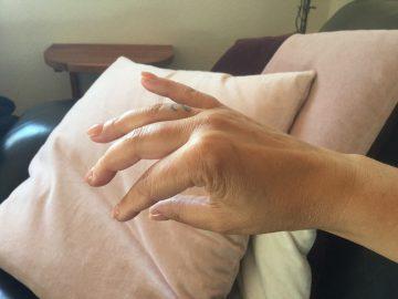 ls, hånd, kloe, livet, med, gigt